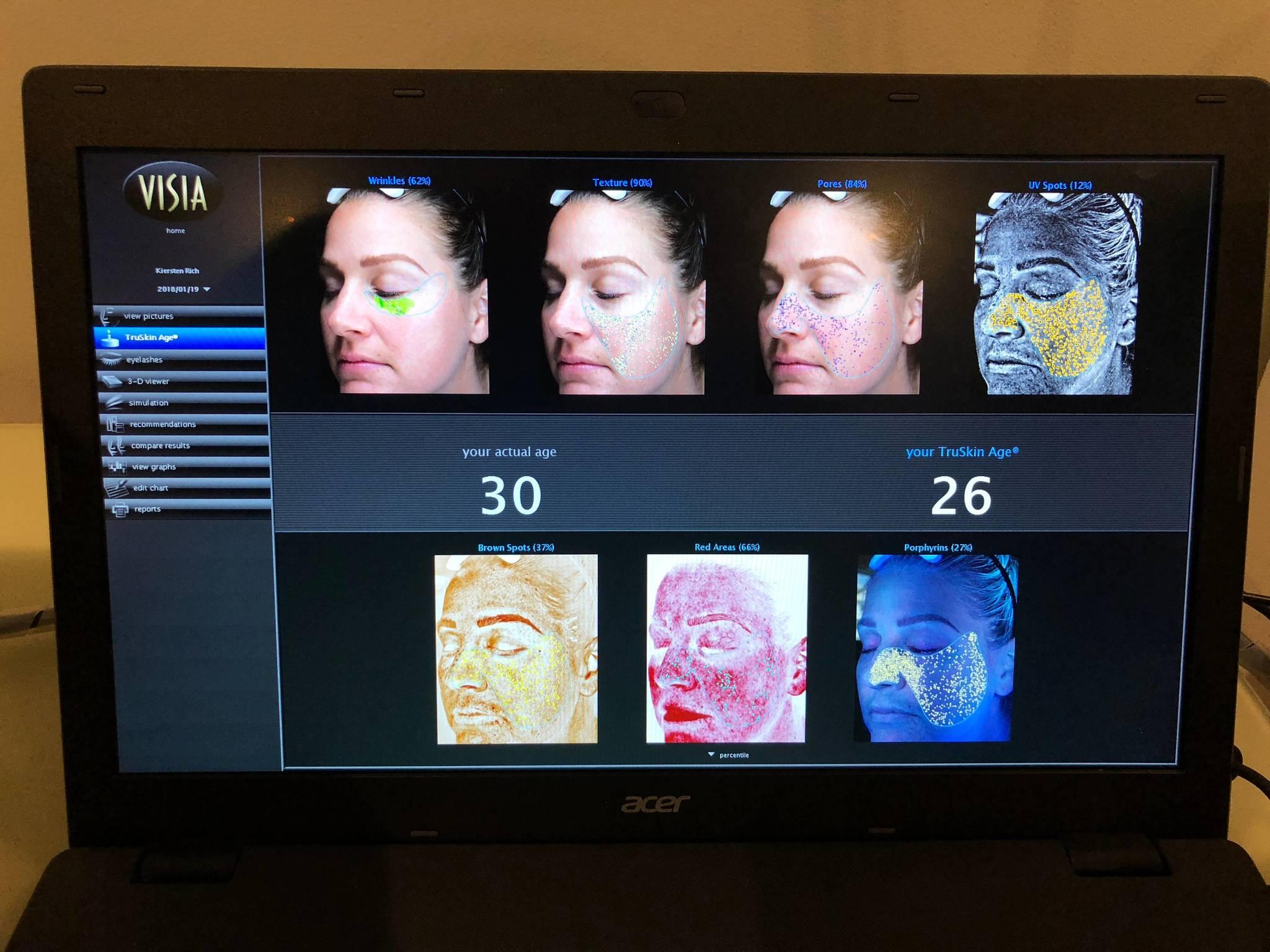 Skin Scan